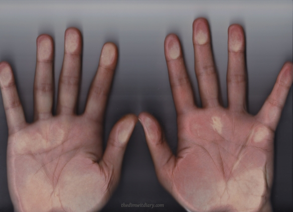 35 Year Old Hands
