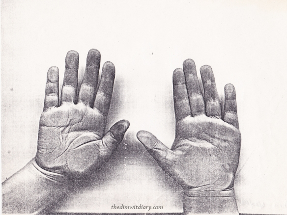 5 Year Old Hands